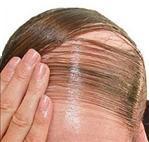 Ginseng contre perte de cheveux