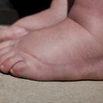 Remèdes naturels contre les pieds gonflés