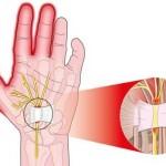 Fourmillements mains et pieds, causes et remèdes