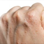 Différents remèdes naturels contre le psoriasis