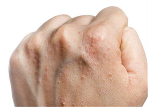 Que traitent le psoriasis aujourdhui
