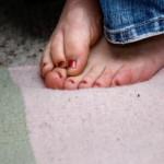 Les corps et les callosités sur les pieds