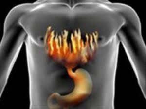 Reflux gastrique et brûlures d'estomac