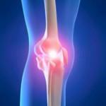 Douleurs articulaires : solutions naturelles