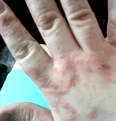 Le psoriasis comme guérir est rapide chez