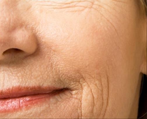Vieillissement de la peau