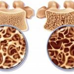 Ostéoporose & graines de chanvre