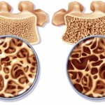 Ostéoporose & Herbe d'orge