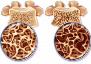 Kéfir contre ostéoporose