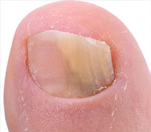 Les envies sur les ongles le traitement