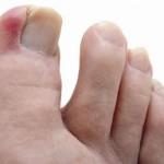 Ongles incarnés : remèdes naturels ?