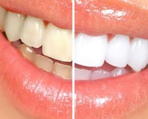 Blanchiment naturel des dents