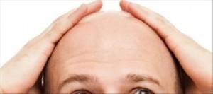 Les vitamines pour les cheveux contre la chute des cheveux merts