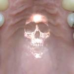 Intoxication au mercure, symptômes et remèdes naturels