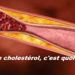 Excès de cholestérol, traitements naturels