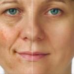 Taches brunes sur le visage traitements naturels