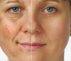 La pigmentation après les boutons sur la personne