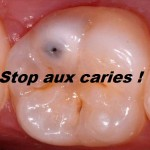 Protection contre les caries ?