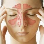 Traiter la sinusite sans médicaments