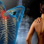 Fibromyalgie et Ganoderma rouge