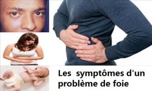 Les  symptômes d'un problème de foie