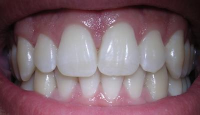 Oil pulling dents blanches