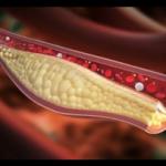 Psyllium & cholestérol