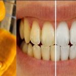 Curcuma : l'arme fatale des dents blanches !