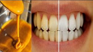 Curcuma efficace pour blanchir et assainir les dents ?