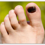 Ongle noir, choc ou maladie ?
