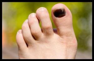 course a pied ongle bleu