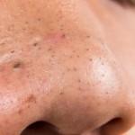 Les meilleures méthodes d'extraction pour enlever les points noirs du visage !