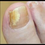 Ongle jaune de pied, doigt, que faire pour s'en débarrasser ?