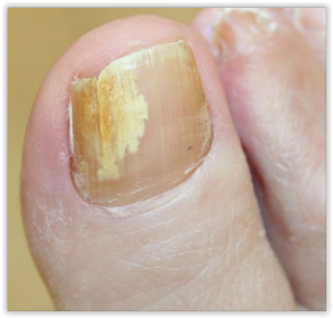 maladie des ongles des pieds