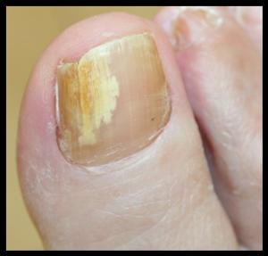 Ongles jaunes causes & symptômes