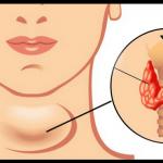 Hypothyroïdie : symptômes, alimentation, huiles essentielles, homéopathie