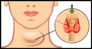 Hypothyroïdie symptômes courants