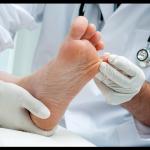 Traitements naturels efficaces du pied d'athlète sans ordonnance